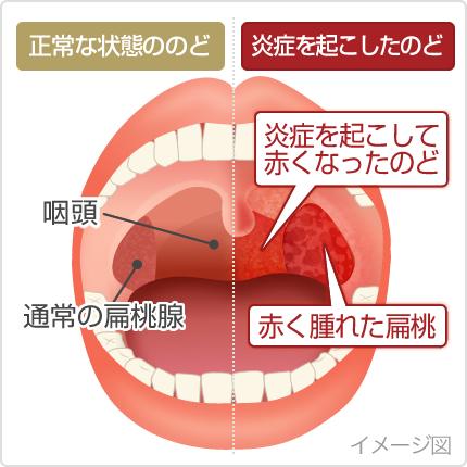 炎 イガイガ 性 食道 逆流 喉